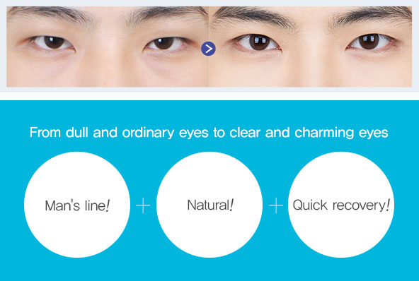 Male blepharoplasty | BEST in korea, Braun Plastic Surgery
