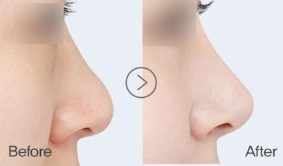 Revision rhinoplasty   Braun Plastic Surgery