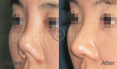 Revision rhinoplasty | Braun Plastic Surgery