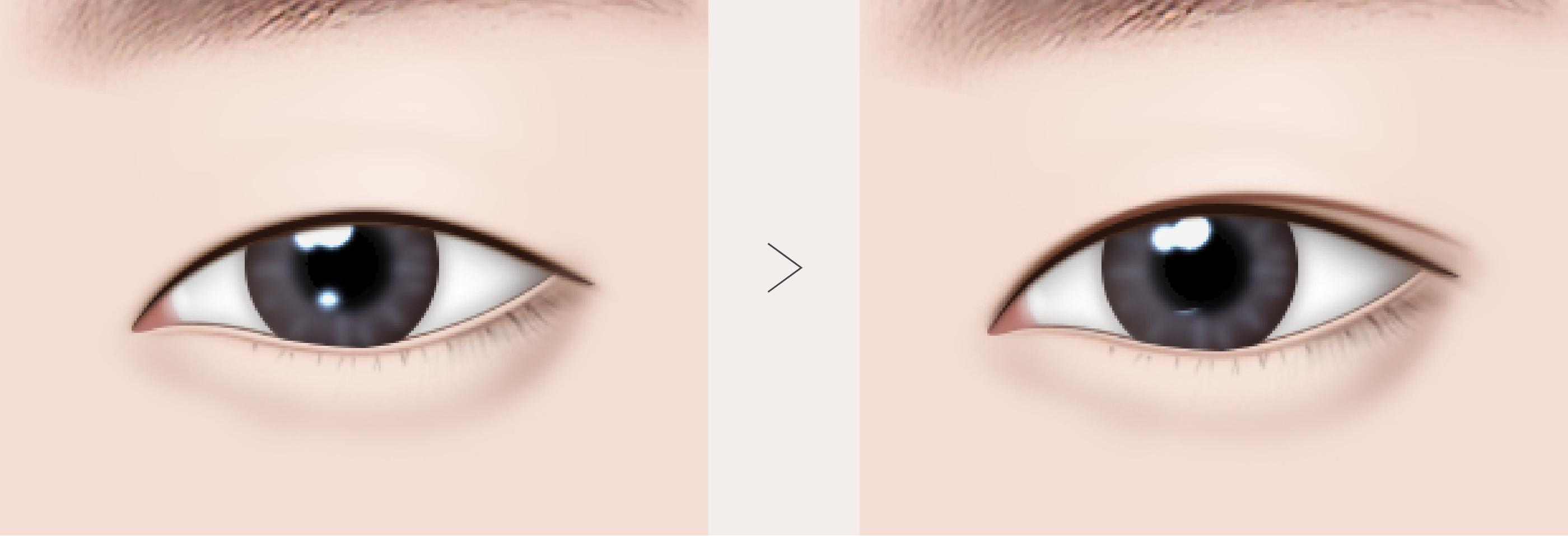 目 整形 大きく