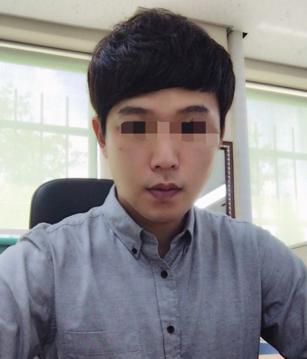 Real Selfi| BEST Plastic surgery in korea, Braun Plastic Surgery